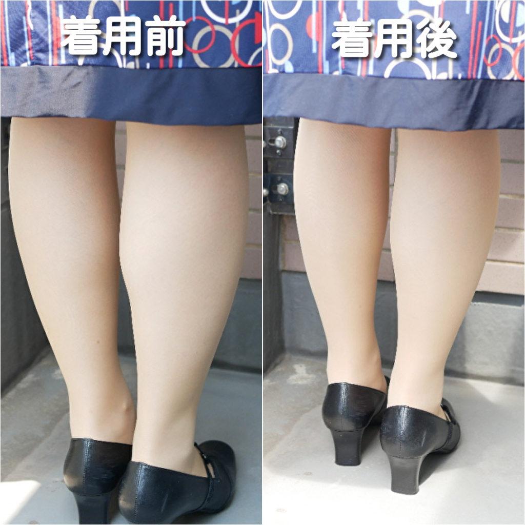 メディカルステイフィットを履いた足のビフォーアフター